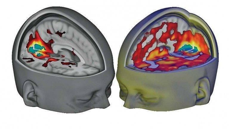 Como funciona um cérebro sob efeito de LSD