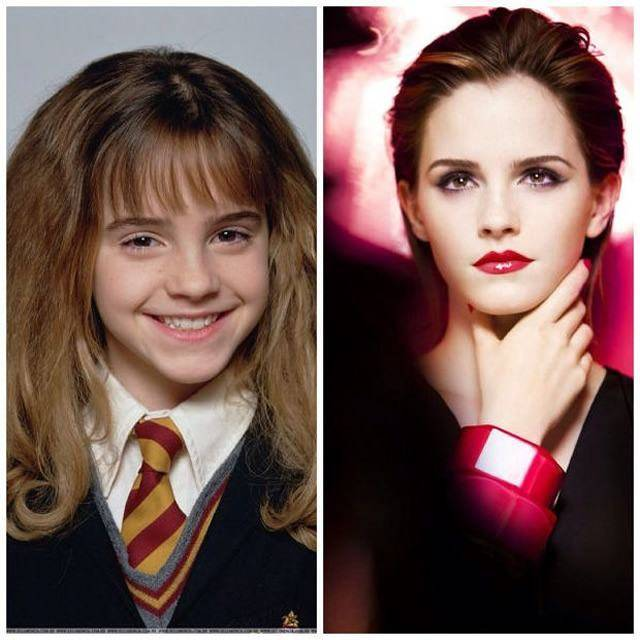 Celebridades que eram feias - Emma Watson