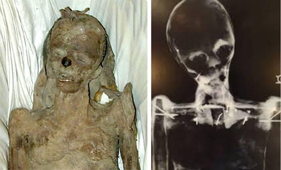 A Múmia de Mississipi, uma das várias fraudes arqueológicas