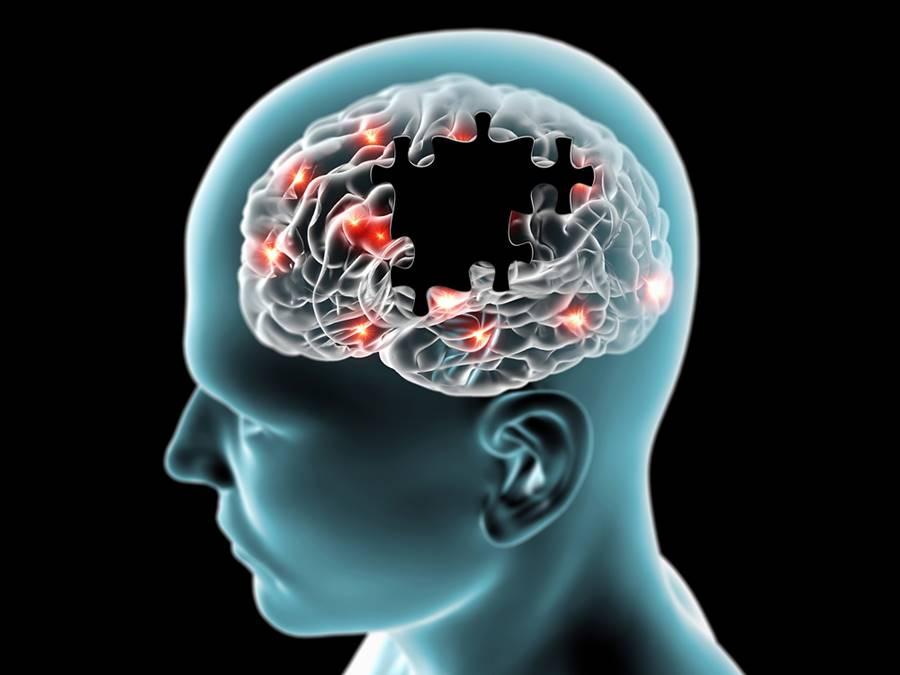 Como é a cura da Alzheimer?