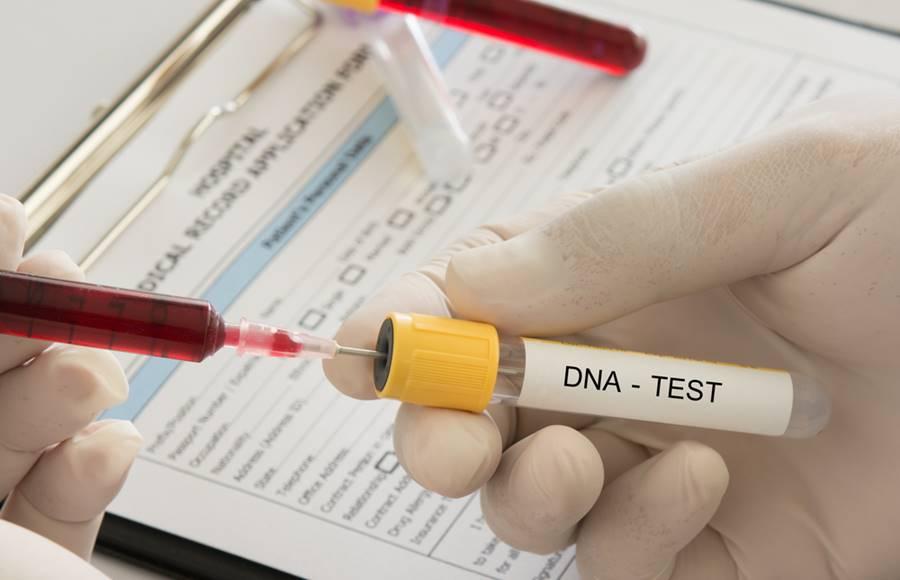 Procedimento de teste de DNA