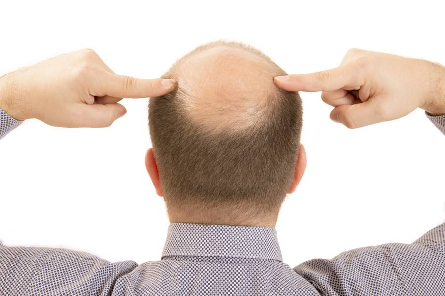 O que leva a queda de cabelos?
