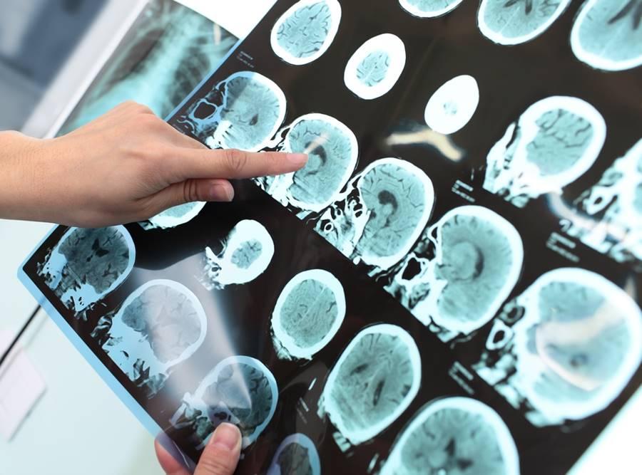 Tratamento e cura da Alzheimer