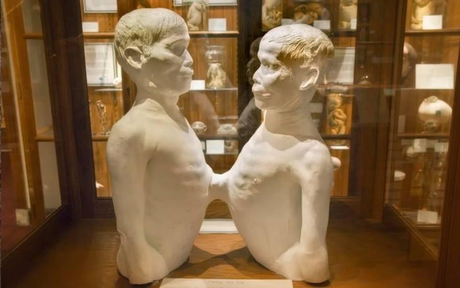 Museu de Anormalidades Médicas