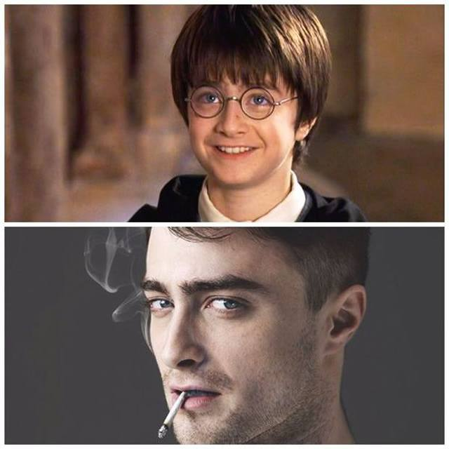 Celebridades que eram feias - Daniel Radcliffe