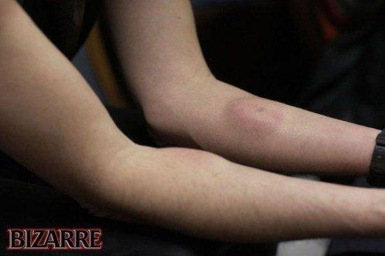 Homem injeta veneno de cobra em si mesmo para aumentar a imunidade (2)