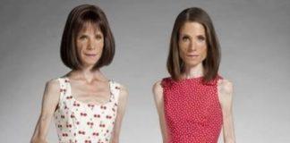 Alguns casos chocantes sobre a Anorexia Nervosa (1)