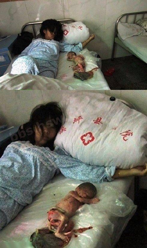 Mulher chinesa é forçada a abortar aos 7 meses, e obrigada a dormir com o feto! (5)